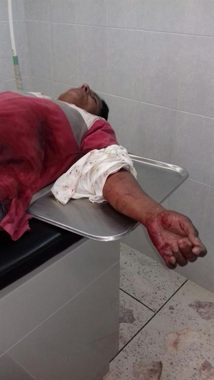 Atacan a migrante hondureño en Huimanguillo,Tabasco