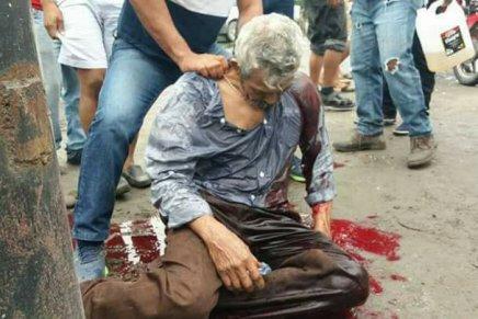 ALERTA: Brutal represion contra manifestantes enHonduras